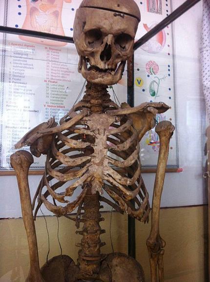 skeleton-2409-1414213576.jpg