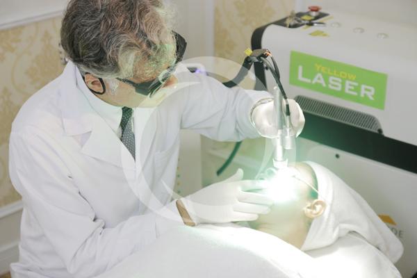 Yellow Laser trị sạch tàn nhang sau một lần điều trị.