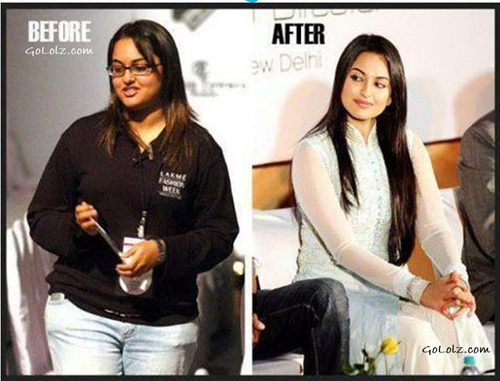 sonakshi-sinha-before-and-afte-7127-9836