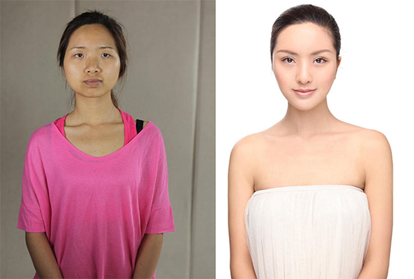 Pictured above is a 26-year-old woman named Liu Yisong, a dance teacher from Chengdu. The image on the left shows Liu before plastic surgery, while the one on the right shows her face post-operation. Liu disliked her eye shape, her flat nose, her round face shape and narrow forehead. She underwent a double eyelid operation, V-line surgery, nose reconstruction surgery and had collagen injections as well as a skin rejuvenation treatment.
