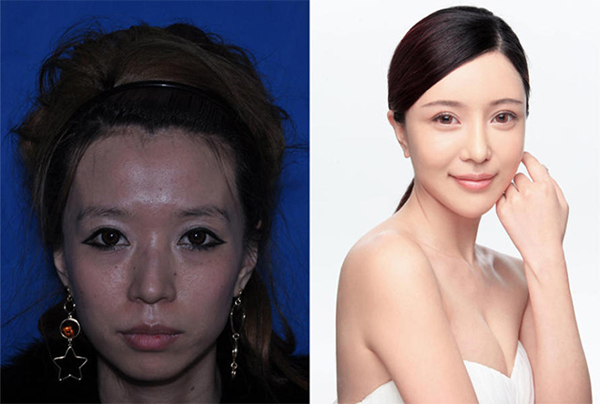 """Zhang Cher is a 27-year-old Chongqing woman and aspiring singer. Zhang sought out surgery to correct her eyelids, the """"hump"""" in her nose, her sunken cheeks and her freckles. She had a nose job, cheek plumping injections and laser freckle removal."""