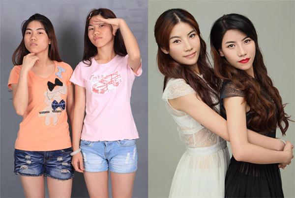 """These 22-year-old twins are students from Nanning. The women previously disliked their matching """"snub"""" noses, round faces, eyes and acne. Both women underwent nose reconstruction surgeries, eye reshaping operations, V-line surgeries, Botox injections and had laser treatment done on their faces."""