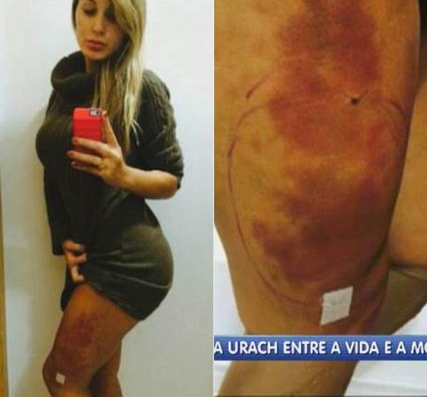 Andressa Urach bị nhiễm trùng ở đùi sau ca phẫu thuật làm đẹp.
