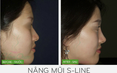 Kỹ thuật nâng mũi 3D