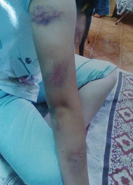 Dấu vết trên người Trinh bị mẹ đánh, được ông Hải chụp lại nộp cho công an