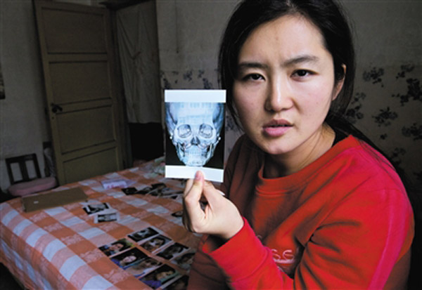 Jin Weichen finds her face deformed after her plastic surgery.