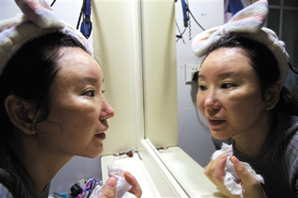 The plastic surgery infected Chen Yili's nose and mouth and left her deformed. Her distorted features make her look ten years older than before.