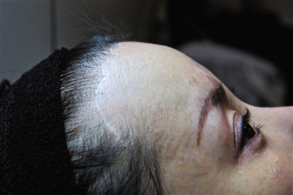 Plastic surgery in Korea left Mi's nose infected and deformed, and destroyed the sense of touch at the front of her scalp. A 20 cm-long scar was left on her hairline, and she lost a lot of hair.