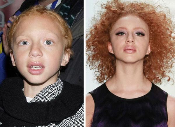 Anna ngày nhỏ (trái) và khi lớn lên