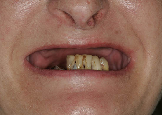 teeth2-5638-1422065644.jpg