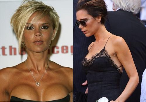breast-2-7955-1423039258.jpg