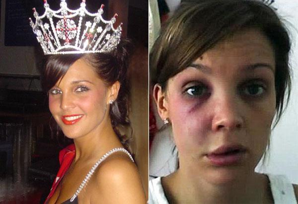 Danielle Lloyd đăng quang Hoa hậu Anh năm 2006 và cô cũng không ít lần bị lên báo vì bị đánh đập. Từng có thời gian, không ai còn nhận ra khuôn mặt xinh đẹp của cựu Hoa hậu Anh bởi cô gái trong ảnh bị thương nặng với đôi mắt thâm tím, môi sưng vều và gò má bầm dập. Lloyd bị chính người yêu của mình đánh đến biến dạng vào năm 2009.