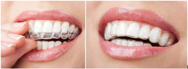 Niềng răng không mắc cài Invisalign - Làm đẹp