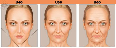 Căng da tạo góc hàm V-line nhờ collagen - Làm đẹp