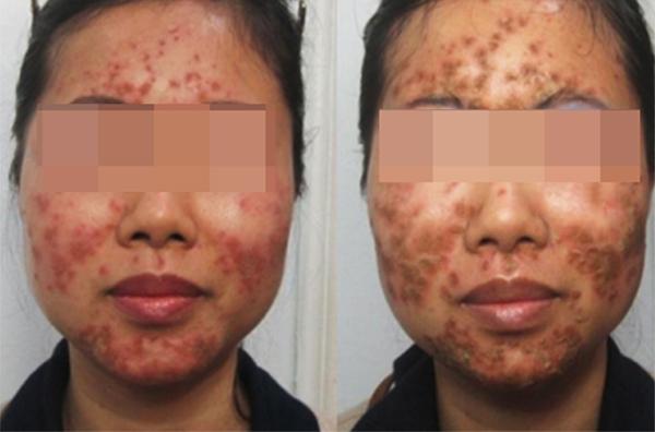 Hỏng da mặt vì chăm sóc da kiểu 'rỉ tai'