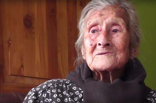 Bào thai hơn 60 năm trong bụng cụ bà 91 tuổi