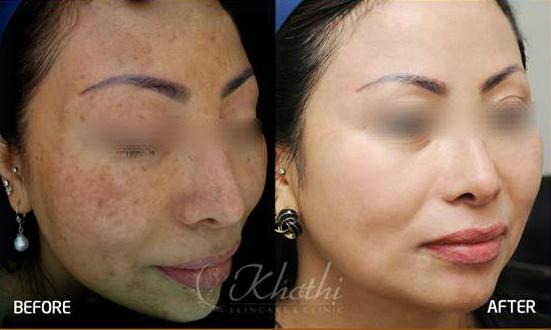 collagen - Làm đẹp: Hiểm họa khi trị nám không đúng cách 26-8-20155-176009366-6464-1440737018