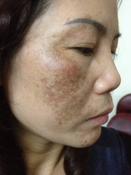 collagen - Làm đẹp: Hiểm họa khi trị nám không đúng cách 26-8-201558-4991-1440737018