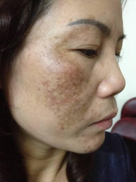 Topics tagged under collagen on Diễn đàn Tuổi trẻ Việt Nam | 2TVN Forum 26-8-201558-4991-1440737018