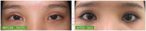 Trường hợp mắt thẩm mỹ mắt bị hỏng khá nặng được phẫu thuật thành công tại JW. Trước đó, cô gái đã cắt mí hỏng tại Thái Lan khiến hai mí to, giả, 2 vết sẹo xấu lộ rõ. Sau khi được tiến hành phẫu thuật mắt to, đôi mắt bạn có hồn hơn.