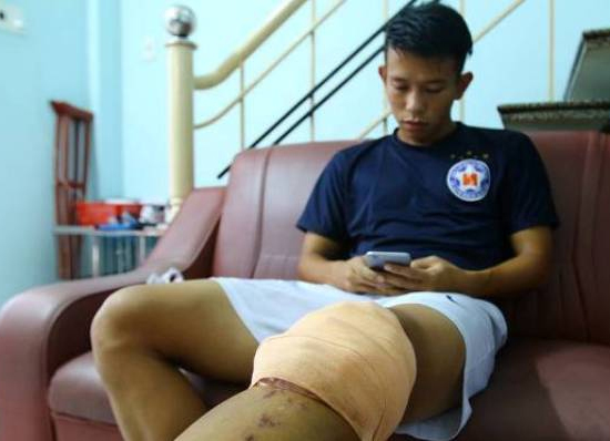 Anh Khoa lên đường sang Singapore phẫu thuật