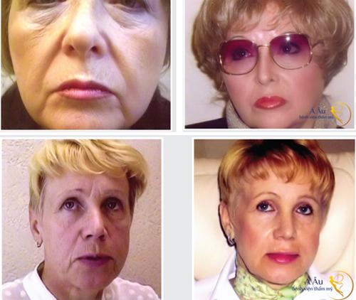 (Ảnh trên) Quý bà người Mỹ cấy lưới chỉ vàng năm 67 tuổi, 5 năm sau, quý bà ở độ tuổi 72 gương mặt trông như chỉ mới 60 tuổi  (Ảnh dưới) Sau 3 năm kể từ khi trải nghiệm dịch vụ, quý bà người Ba Lan nhận thấy rõ ràng lợi ích của chỉ vàng 24k đem lại