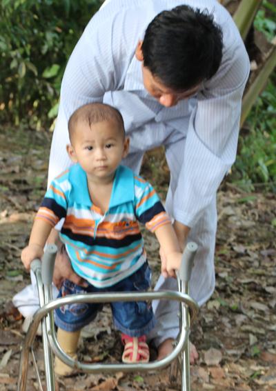 Người cha tật nguyền đang cố gắng tập cho con trai đi với 1 chân phải là giả. Ảnh: Cửu Long