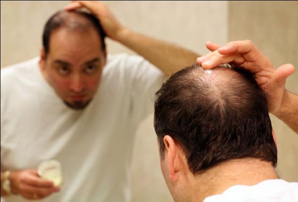Nguyên nhân gây rụng tóc nhiều - Làm đẹp