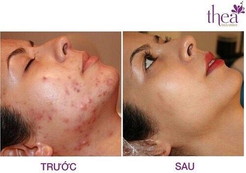 Cảm nhận sự khác biệt trước và sau điều trị da tại Thea.