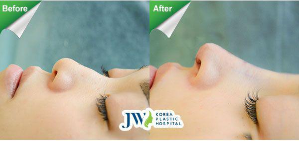 Sau phẫu thuật nâng mũi S line bằng Demoderm tại JW bởi tiến sĩ, bác sĩNguyễn Phan Tú Dung, mũi trở nên thanh thoát, tự nhiên; tồn tại lâu dài,an toàn trước biến chứng.