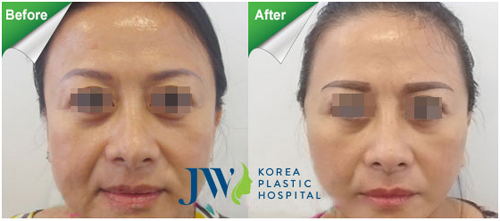 Giải pháp căng da mặt cho người có tuổi
