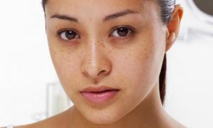 6 sai lầm trong ăn kiêng tàn phá làn da của bạn