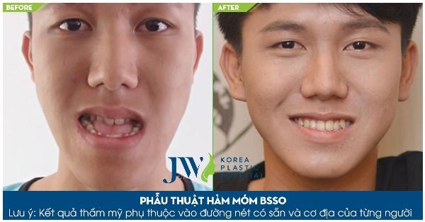 TSBS Tu Dung ho tro chi phi phau thuat ham ho mom