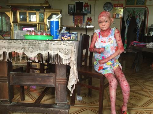 Tròn 19 năm cô gái sống cùng bệnh tật nhưng luôn giúp đỡ những người nghèo. Ảnh:Thiên Chương