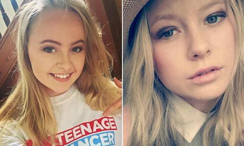 Nốt ruồi lạ và cái chết vì ung thư da của thiếu nữ 18 tuổi