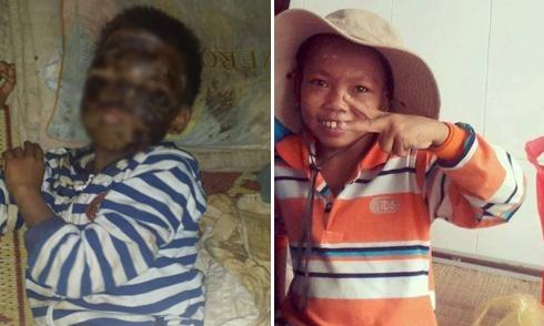 Cộng đồng kêu gọi trợ giúp cậu bé bị bỏng toàn mặt ở Nghệ An