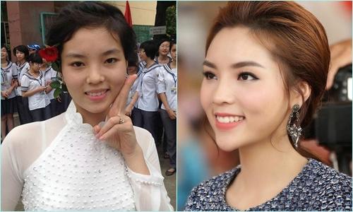 Dàn 'Bông hậu' Việt 'lên đời' nhan sắc nhờ sửa răng - Làm đẹp