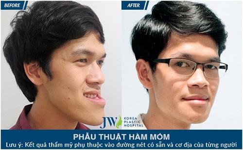 jw-benh-vien-uy-tin-ve-phau-thuat-ho-mom-hai-ham-tai-viet-nam-6