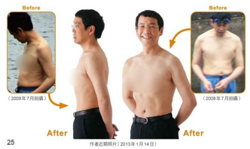 Hình ảnh bác sĩ Masashi Kawamura trước và sau khi thực hiện phương pháp này.