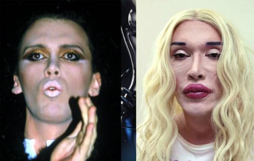 Pete trước và sau khi phẫu thuật thẩm mỹ. Ảnh: Channel 5.