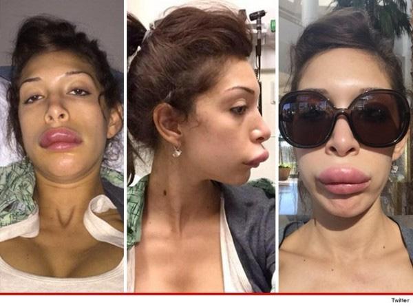 Ngôi sao Teen Mom - Farrah Abraham - với cặp môi sưng vều sau khi phẫu thuật thẩm mỹ.