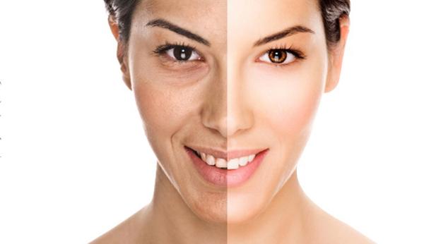 Nếp nhăn xuất hiện nhiều quanh miệng khi cười là dấu hiệu cơ thể bạn đang thiếu vitamin B và C.
