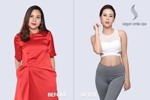 Công cuộc giảm béo của phái đẹp sau sinh