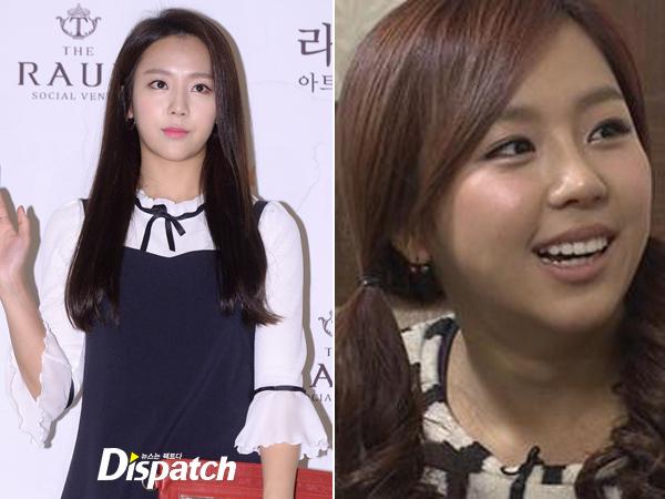 Trong một tập của We Got Married, Yewon đã bình thản thừa nhận phẫu thuật thẩm mỹ tại vùng đầu mũi: Tôi đã làm mũi, chỉ một chút thôi. Tôi định tút tát nhiều hơn trong tương lai, một chút ở phần đuôi mũi