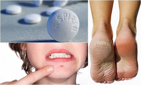 Có thể bạn chưa biết: Chỉ vài viên aspirin là đủ giúp bạn đẹp từ đầu đến chân