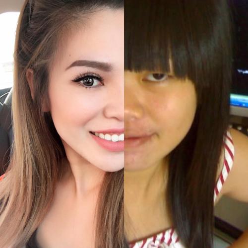 So sánh khuôn mặt của Khuyên trước đây và hiện tại.
