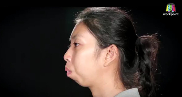 Khiếm khuyết lớn nhất trên khuôn mặt của Jitraporn là phần hàm hô.