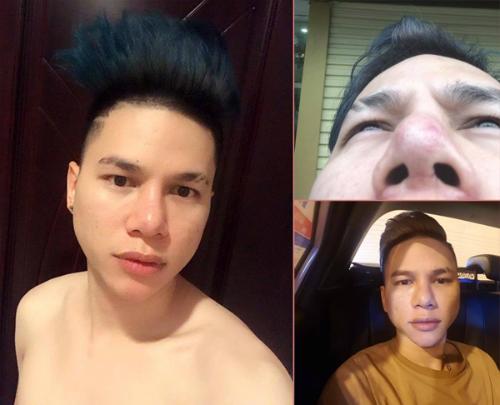 Hoàng Tôn công khai chia sẻ về biến chứng mà anh gặp phải sau khi phẫu thuật mũi và cằm.