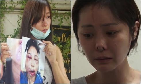 4 tai nạn phẫu thuật thẩm mỹ gây rúng động trong năm 2016