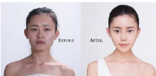 Cô gái Trung Quốc chi 100 triệu Nhân dân tệ để phẫu thuật giống Angelababy - ảnh 1